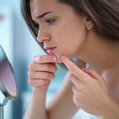 Svakodnevne navike koje uzrokuju akne
