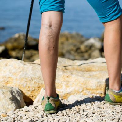 Koje su fizičke aktivnosti korisne za proširene vene